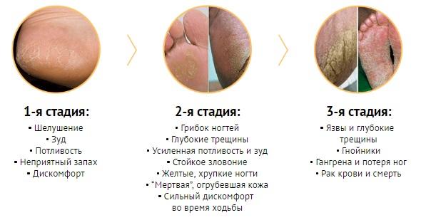 Чем опасен грибок на ногах?
