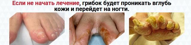 Что будет если не лечить грибок ногтей?