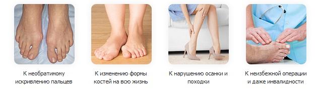 Почему деформируется большой палец ноги?