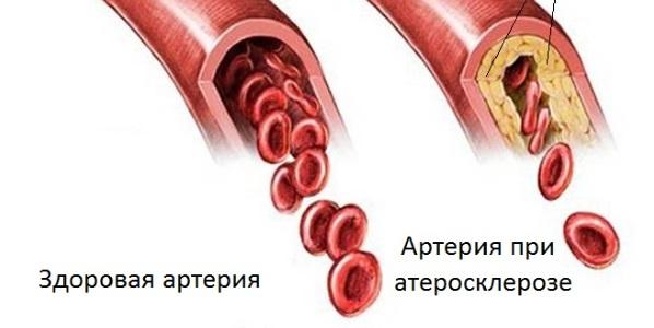 Симптомы проблем с сосудами